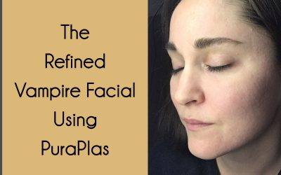 The Refined Vampire Facial Using PuraPlas