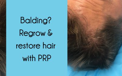 Balding? Regrow & restore hair with Platelet-Rich Plasma