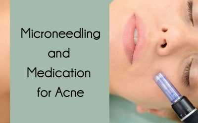 Microneedling and Medication for Acne