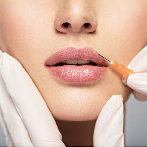 Dangers of Long-Term Lip Filler
