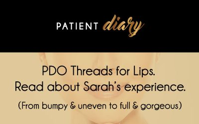 PDO threads for Lips