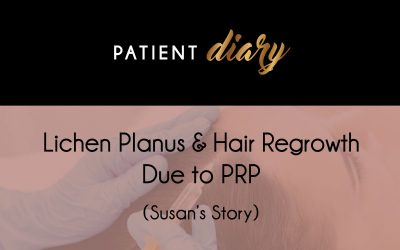 Lichen Planus & Hair Regrowth Due to PRP