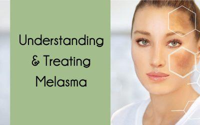 Understanding & Treating Melasma